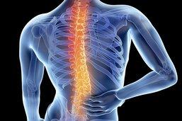 La mécanique complexe de l'arthrose