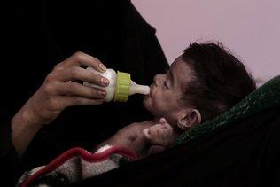 La faim dans le monde s'aggrave, sombres perspectives, selon l'ONU